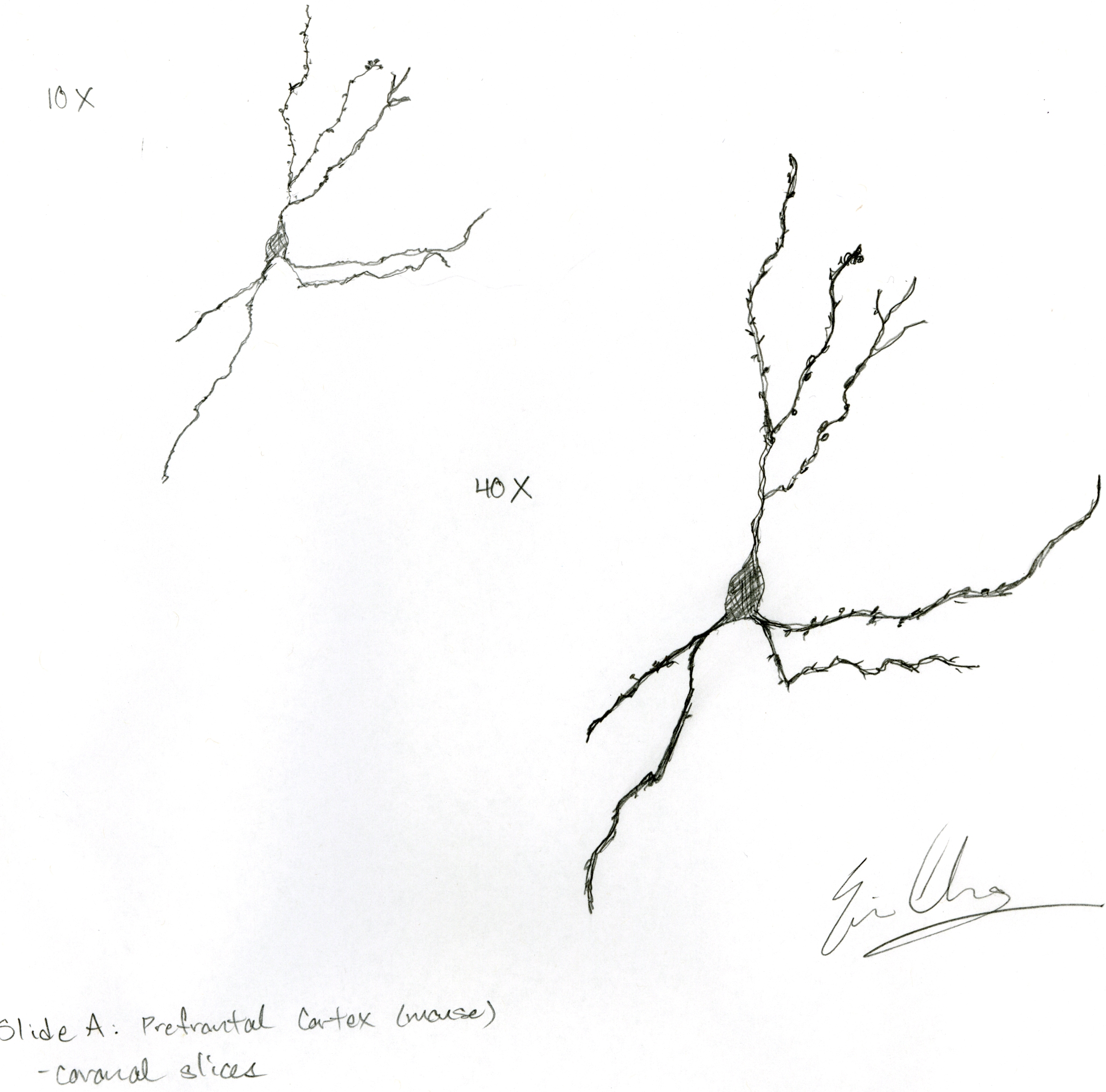Brain Axons Dendrites Their Axons And Dendrites